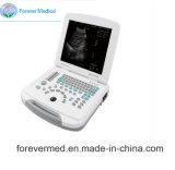 의료 기기 가득 차있 디지털 휴대용 퍼스널 컴퓨터 초음파 스캐너