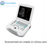 Scanner Plein-Digital d'ultrason d'ordinateur portatif d'équipement médical