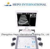 Ultrason ultrasonique de Digitals de scanner de matériel d'hôpital