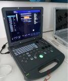 Huc-200 Portable Ultrasonido Doppler portátil 2D Doppler Ultrasonido