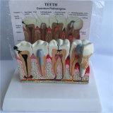 Unterrichtender Gebrauch pathologische Zahn-Anatomie Zahnpflege-Modell (R080119)