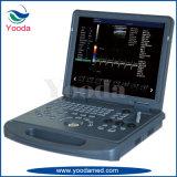 Máquina llena del ultrasonido del equipamiento médico de la proyección de imagen de la viga de Digitaces de la computadora portátil ligera y fina