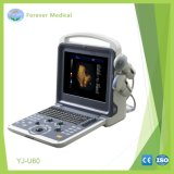 Totalmente digital, scanner de ultra-sonografia com Doppler colorido (YJ-U60)