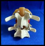 デモンストレーションの腰神経ディスクHerniationのモデル脊椎のシミュレーターを拡大しなさい