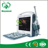 New Product Potable Color Doppler B Ultrasound Scanner for Sale