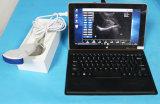 Aprovado pela CE scanner de ultra-som USB portátil com sonda convexa