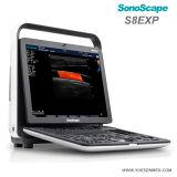 Poco costoso cardiaco portatile medico di Sonoscape S8exp che la macchina 3D 4D di ultrasuono di Doppler di colore di Mindray