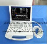 Couleur à extrémité élevé Doppler d'ultrason d'écho pour le diagnostic cardiaque