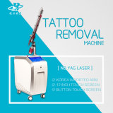 Q-Switch Nd YAG eliminar tatuajes