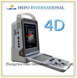 普及したカラードップラー3D/4D超音波のスキャンナー(HP-UC600P2)
