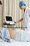 高い感度の医療機器の胎児の心拍数の忍耐強いモニタ