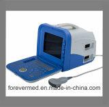 """4D 3.0V 트롤리 Elastrographie 초음파 기계 Wirh 19 """" LCD 스크린"""