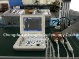 ラップトップ12.1インチのセリウムによって証明されるぼうこう診断超音波機械