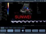 新しい来るカラードップラー無線超音波のスキャンナー