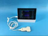 Sonde convexe linéaire d'ultrason de la CE USB
