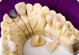 IPS van Customrized e-Maximum Kroon met Mooie Kleur als Echte Tanden
