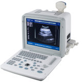 Beweglicher B/W Ultraschall-Scanner für Menschen (RUS-9000B) - Martin