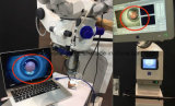 Adaptador de câmera de vídeo Full HD (adaptador de microscópio cirúrgico para câmera HD)