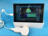 Цифровой 2D-USB портативного ультразвукового аппарата/зонд для планшетных ПК/PC/Windows10 ЭБУ системы впрыска