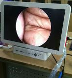 Ветеринарные эндоскопии все в одной камере с индикатором и монитор