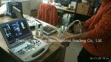 Arzneimittel-beweglicher Ultraschall-Scanner mit Cer