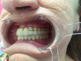 Ponticello avvitato metal-ceramico dentale dell'innesto