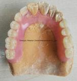 Valplast Gebiss für Klinik von der chinesischen zahnmedizinischen Mitte