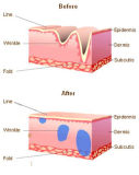 Ácido hialurônico Injecção Singfiller Anti-Aging depósito dérmico rugas
