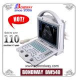 De digitale Draagbare Machine van de Echoscopie, Transvaginal Prijs van de Sonde, Endovaginal Sonde, Vaginale Omvormer (BW540)