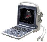 De meesten gaan Systeem van de Ultrasone klank van het Instrument van de Technologie het Digitale Kenmerkende vooruit
