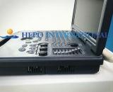 Ultrasonido portable de Doppler del color del equipo del hospital de la promoción grande