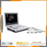 Bcu10 Cheap Portable B/W Medical Image Diagnostic Ultrasound Machine