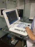 Sun-806e Minilaptop-hochwertiger niedriger Preis-beweglicher Ultraschall-Scanner