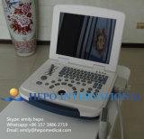 携帯用B/W医学機械デジタル超音波のスキャンナー