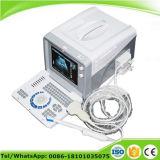 10-duim de Draagbare Scanner van de Ultrasone klank (rus-6000D) - Fanny