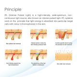 La mejor máquina permanente del laser de Shr IPL del retiro del pelo de Euopean