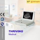 Thr-Lt001 voll Digital beweglicher Laptop-Typ Ultraschall-Maschine
