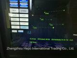 デジタル3D/4D医学のシステム病院の超音波のスキャンナー