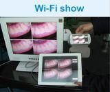 HFW-beste QualitätsWilress zahnmedizinische intra-orale Kamera mit Cer, FDA