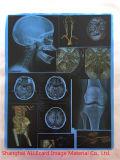 医学の放射性フィルムの医学の乾燥したフィルム