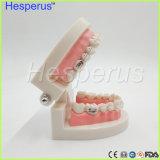 절반 금속을%s 가진 치과 1/2 기준 치열은 절반 세라믹 부류 이 모형을 일괄한다