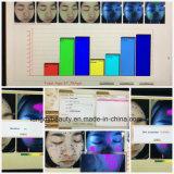 Лицевой портативный лицевой анализатор поляризовыванное Wirh кожи