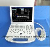 Scanner d'ultrason de l'équipement médical 3D/4D Digitals