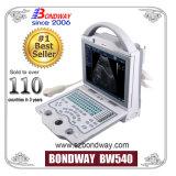 Abdonimal、Gyn、Obの泌尿器科学、心臓学、小児科のための医学診断装置の携帯用スキャンナーの超音波(BW540)