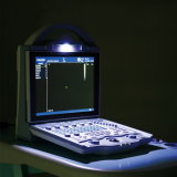 小さい病院の診断器械カラードップラー超音波
