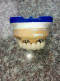 Ponticello metal-ceramico dell'innesto dentale dal laboratorio dentale della Cina