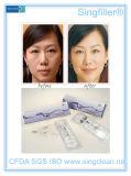 Singfiller El Ácido Hialurónico relleno de arrugas para quitar arrugas