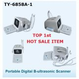 Explorador portable del ultrasonido de la venta caliente de la tapa 1 con el Ce, certificado ISO13485