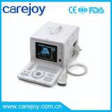 Bevordering! ! 10-duim de Draagbare Scanner van de Ultrasone klank met Convexe Sonde (rus-6000D) - Fanny