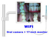 17 인치 Monitor WiFi Connection (J0002)를 가진 치과 Intraoral Camera